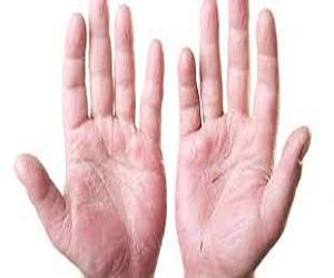egzamaya-karsı-yararlı-gelen-bitkiler-nelerdir